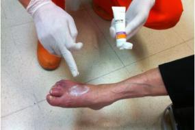 Tratamiento preventivo de la piel en un paciente de edad avanzada