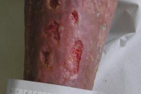 Tratamiento de elección en una úlcera venosa típica, con tejido desvitalizado, infección y exudado: cadexómero yodado