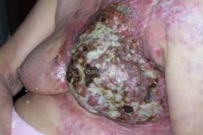 Cura paliativa con ALLEVYN™ GENTLE y ALLEVYN™ Ag GENTLE en herida tumoral secundaria a un Cáncer de mama