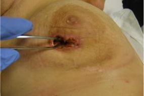 Herida en mama tratada con terapia presión negativa